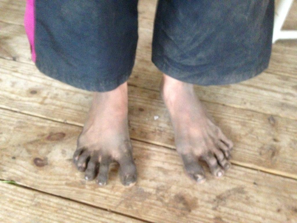 """Azela's """"Shrek"""" farm feet"""